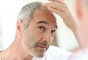 Выпадение волос или Алопеция на голове: как лечить облысение ★ ветом при выпадении